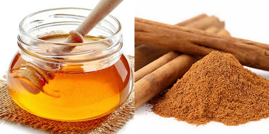 Kết hợp mật ong và quế để điều trị mụn thâm
