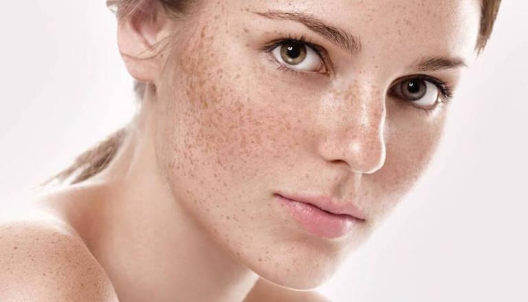 Nám da hiện diện trên gương mặt, khiến da tối màu và trở nên kém duyên