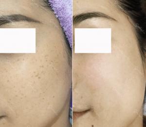 trước và sau khi sử dụng phác đồ điều trị nám da chuyên sâu tại SeoulSpa.Vn