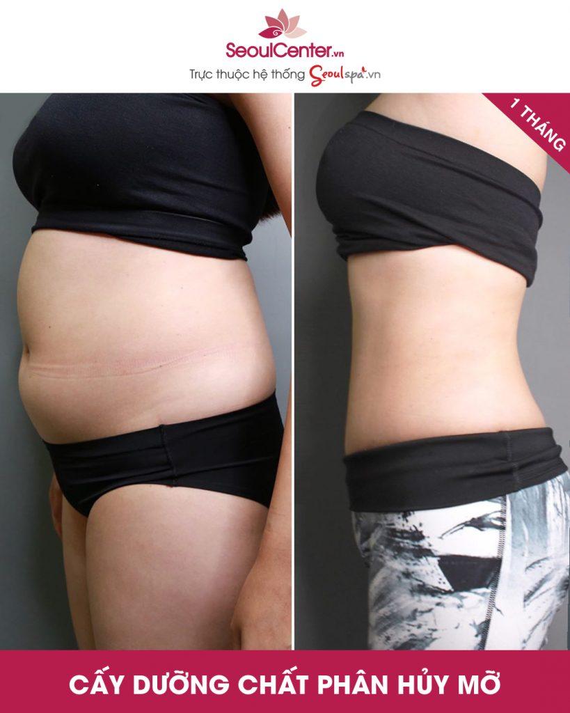 Vòng eo mơ ước của các nàng sau khi tiêm giảm mỡ bụng bằng phương pháp cấy dưỡng chất phân hủy mỡ bụng