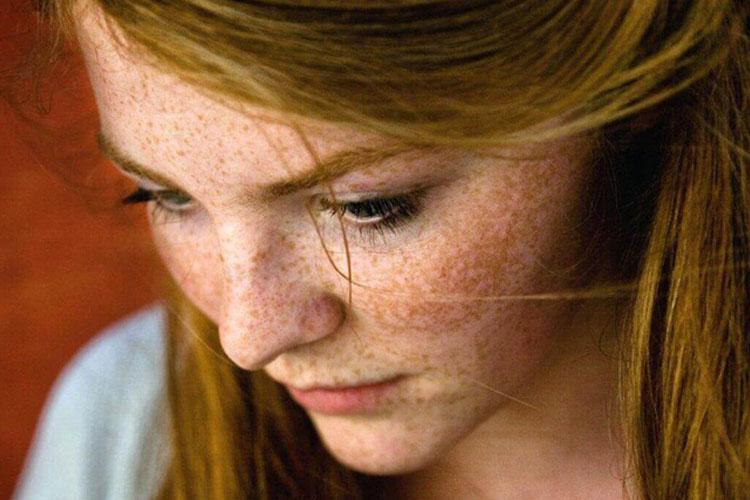 Da mặt bắt đầu xuất hiện nám khi phụ nữ bước qua tuổi 30