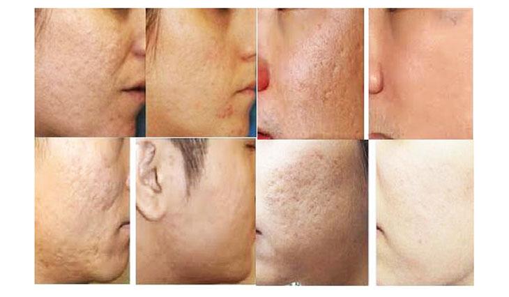 Sẹo rỗ không thể tự lành mà cần phương pháp điều trị phù hợp