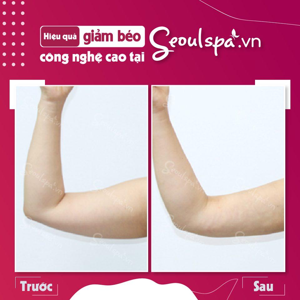 Hình ảnh khách hàng trước và sau khi thực hiện thu gọn bắp tay tại SeoulSpa.vn