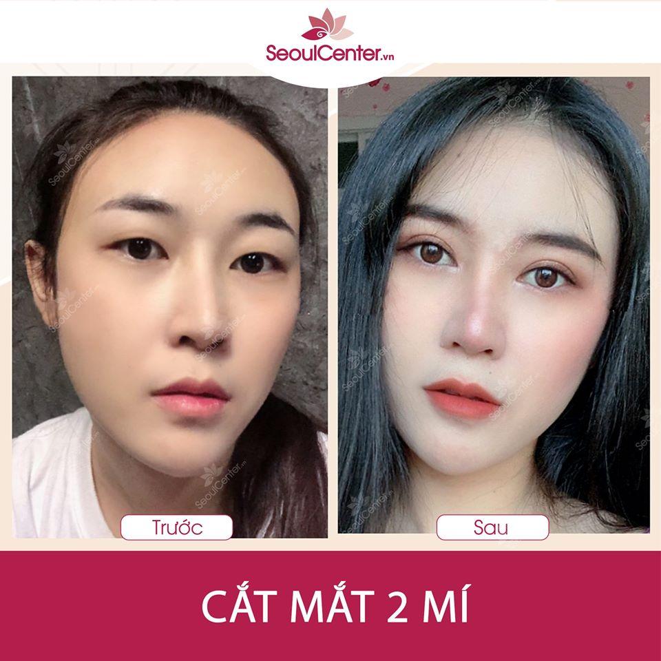 Sau khi thực hiện cắt mí Hàn Quốc tại Seoul Center, khách hàng đã có đôi mắt to tròn đẹp hơn, mí mắt rõ hơn.