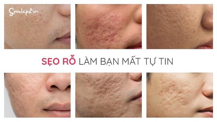 Da mặt bị rỗ ảnh hưởng đến ngoại hình và tâm lý