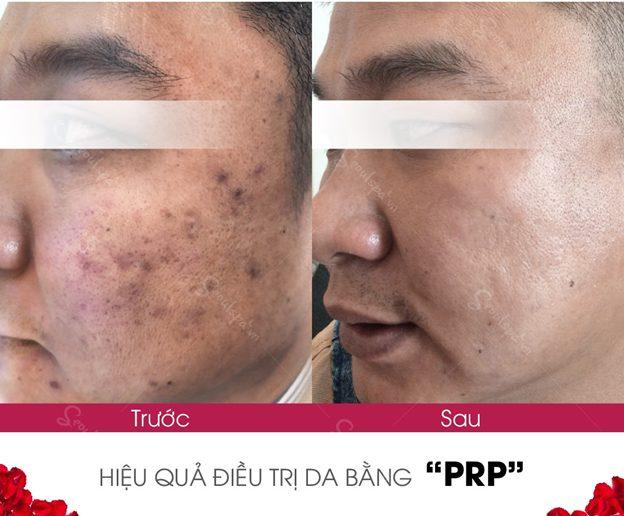 Tái tạo da mặt bị rỗ hiệu quả bằng PRP 4.0