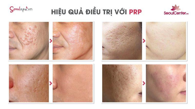 Kết quả trị sẹo rỗ bằng PRP 4.0 tái tạo da bị rỗ tại SeoulSpa.Vn
