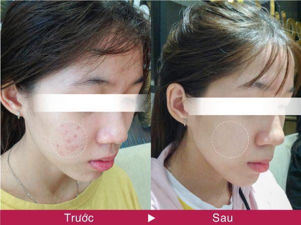 Kết quả sau khi trị mụn tại SeoulSpa