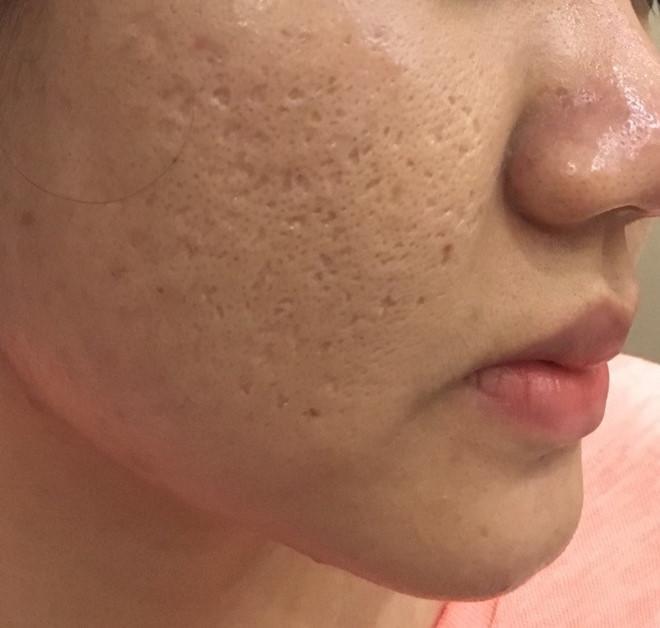 Sẹo rỗ và lỗ chân lông to ảnh hưởng đến thẩm mỹ khiến người bệnh mất tự tin