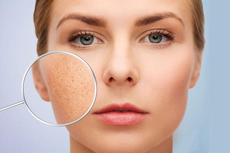 Phương pháp trị sẹo rỗ PRP được các chuyên gia sắc đẹp đánh giá cao về hiệu quả