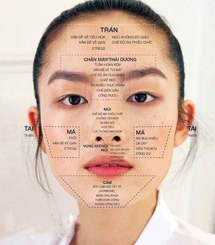 Face mapping - bản đồ phản ánh vị trí nổi mụn trên khuôn mặt