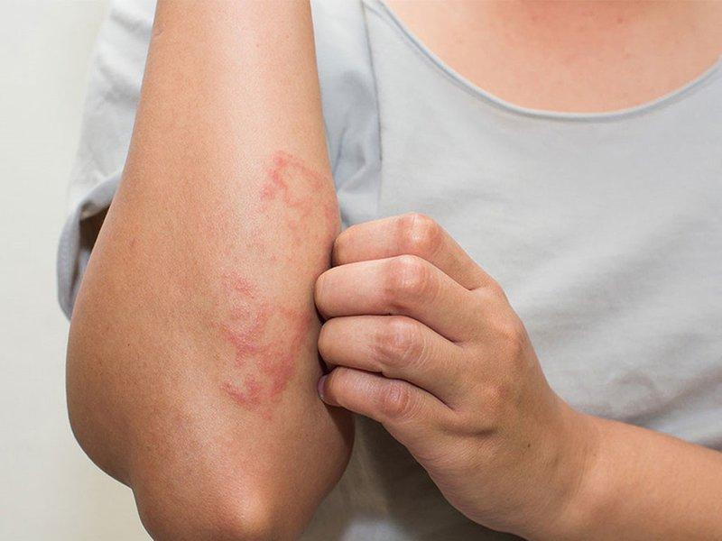 Ngưng sử dụng ngay khi có triệu chứng ngứa và nổi mẩn trên da