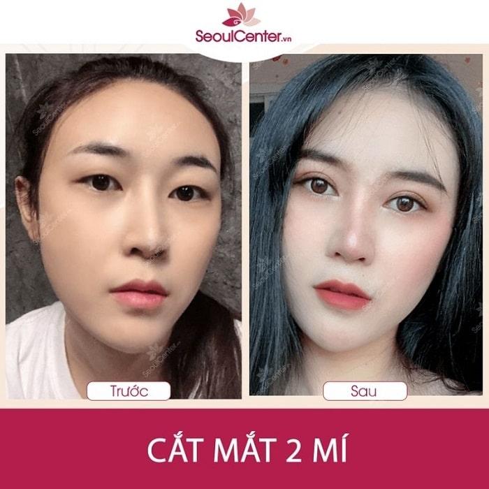 Chị Dương Thanh Ngân sử dụng dịch vụ cắt mí mắt do BS. Phạm Thanh Hào thực hiện