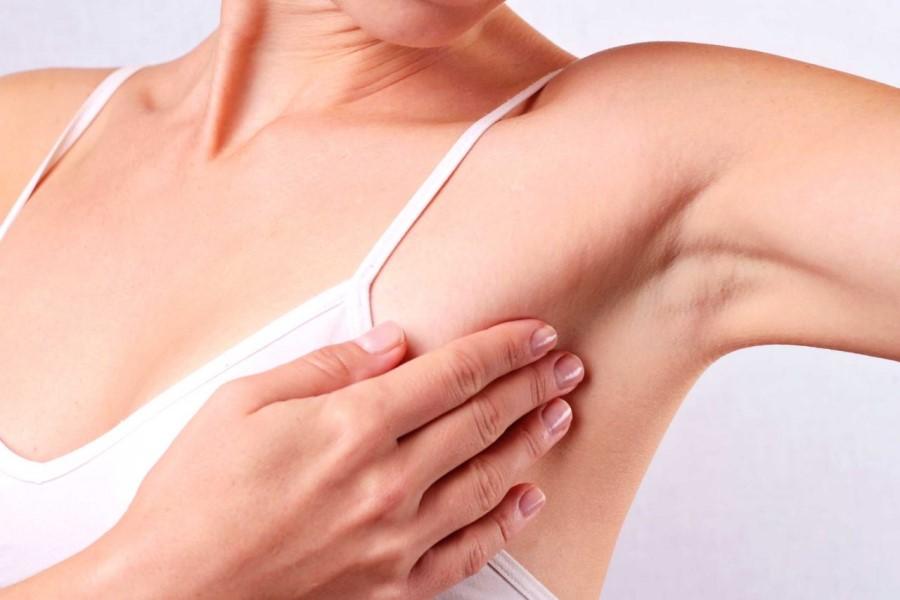 Nhổ lông nách không đúng cách có thể gây thâm nách và sần sùi
