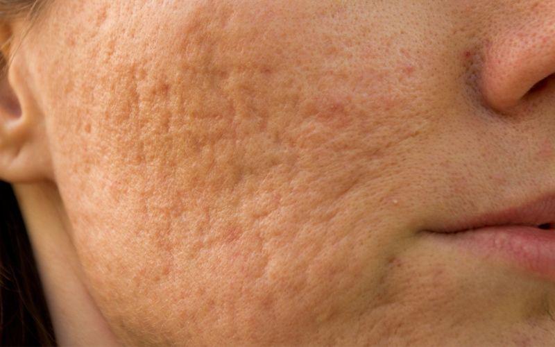 Sẹo lõm khiến làn da sần sùi, không mịn màng