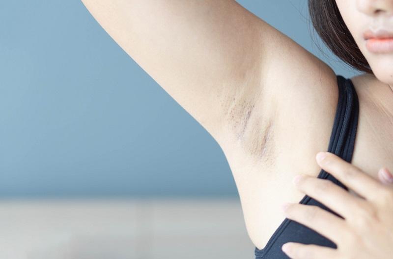 Sau khi tẩy lông nách cần dưỡng ẩm cho vùng da này