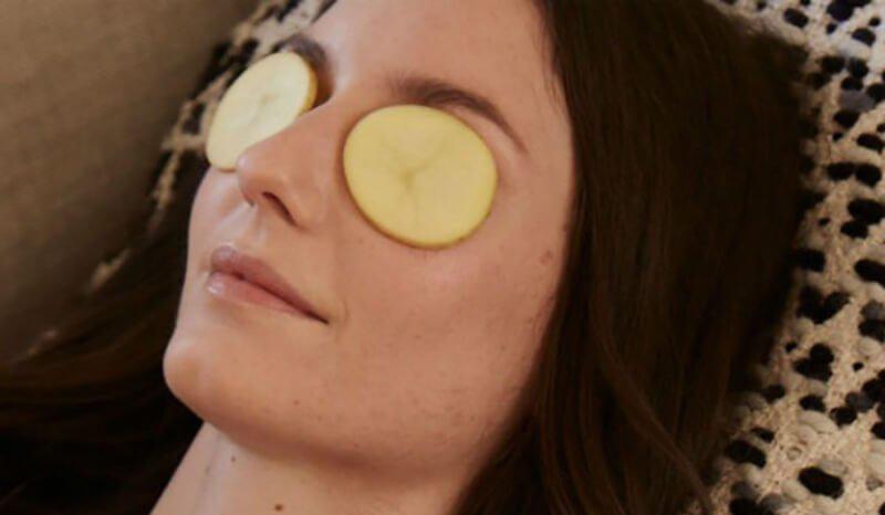 Khoai tây giúp làm giảm sưng mắt và thâm quầng mắt