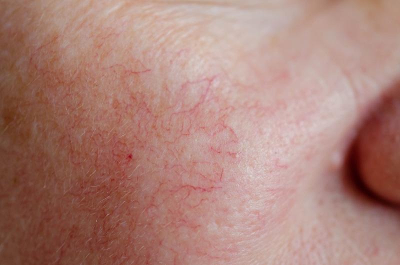 Có nhiều yếu tố giúp nhận biết làn da mỏng