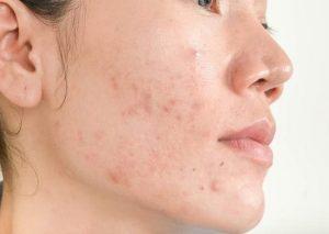 Thâm mụn là kết quả khi tự làm lành tế bào da bị tổn thương do mụn trên da