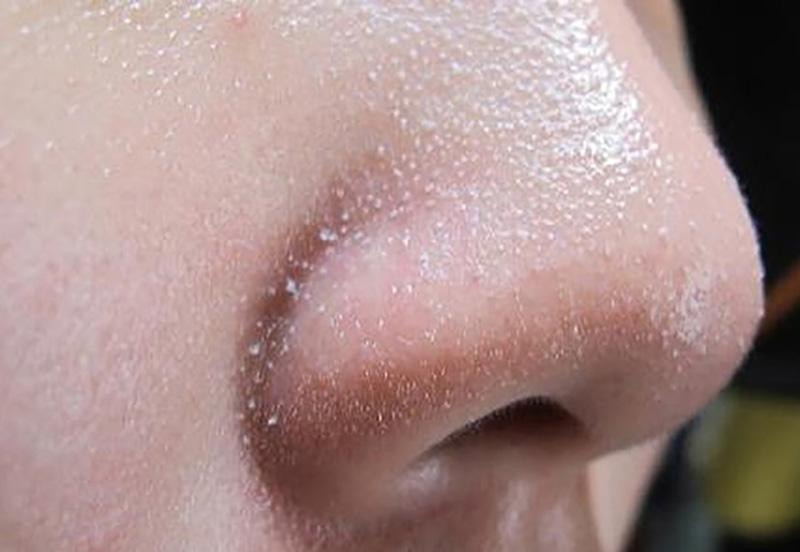 Mụn cám xuất hiện chi chít ở vùng mũi gây mất tự tin